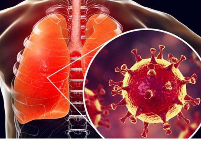 La pandemia globale di Coronavirus? Simulata nel 2019