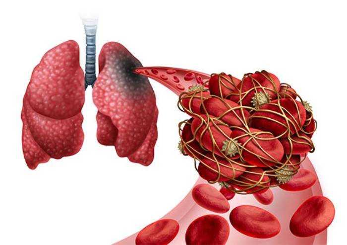Trombosi polmonari da Covid, scoperto a Modena meccanismo attivazione